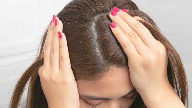 طريقة ازالة القشرة من الشعر ريقة-ازالة-القشرة-من-الشعر