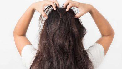 قشرة-الشعر