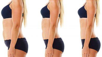 شفط-الدهون-بالفيزر