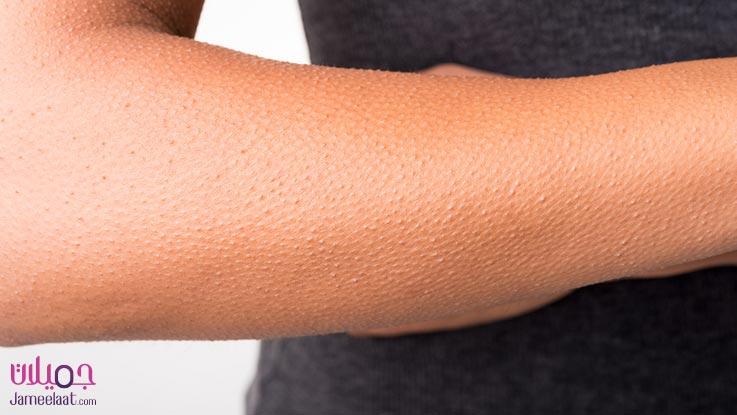 كيفية التخلص من جلد الوزة